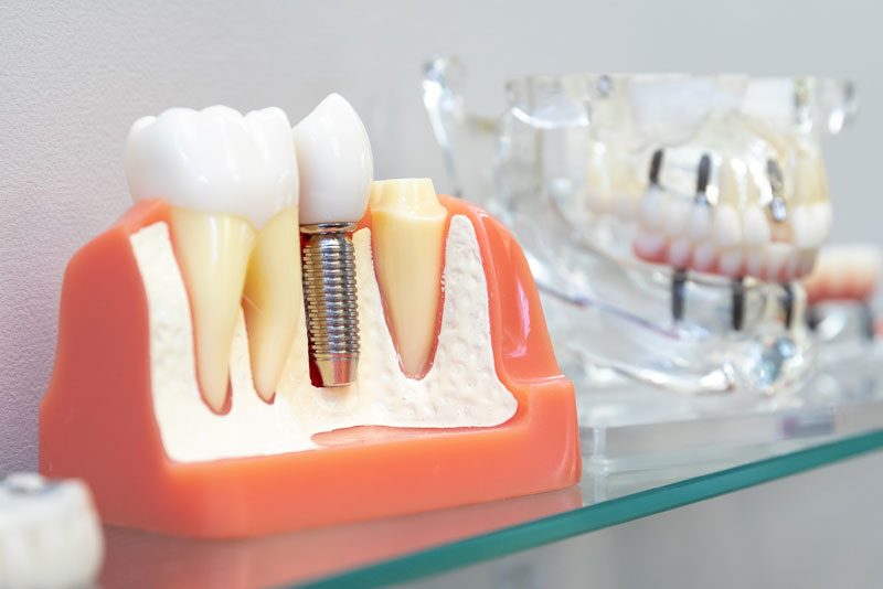 Dental Implant In Your Bone, Model