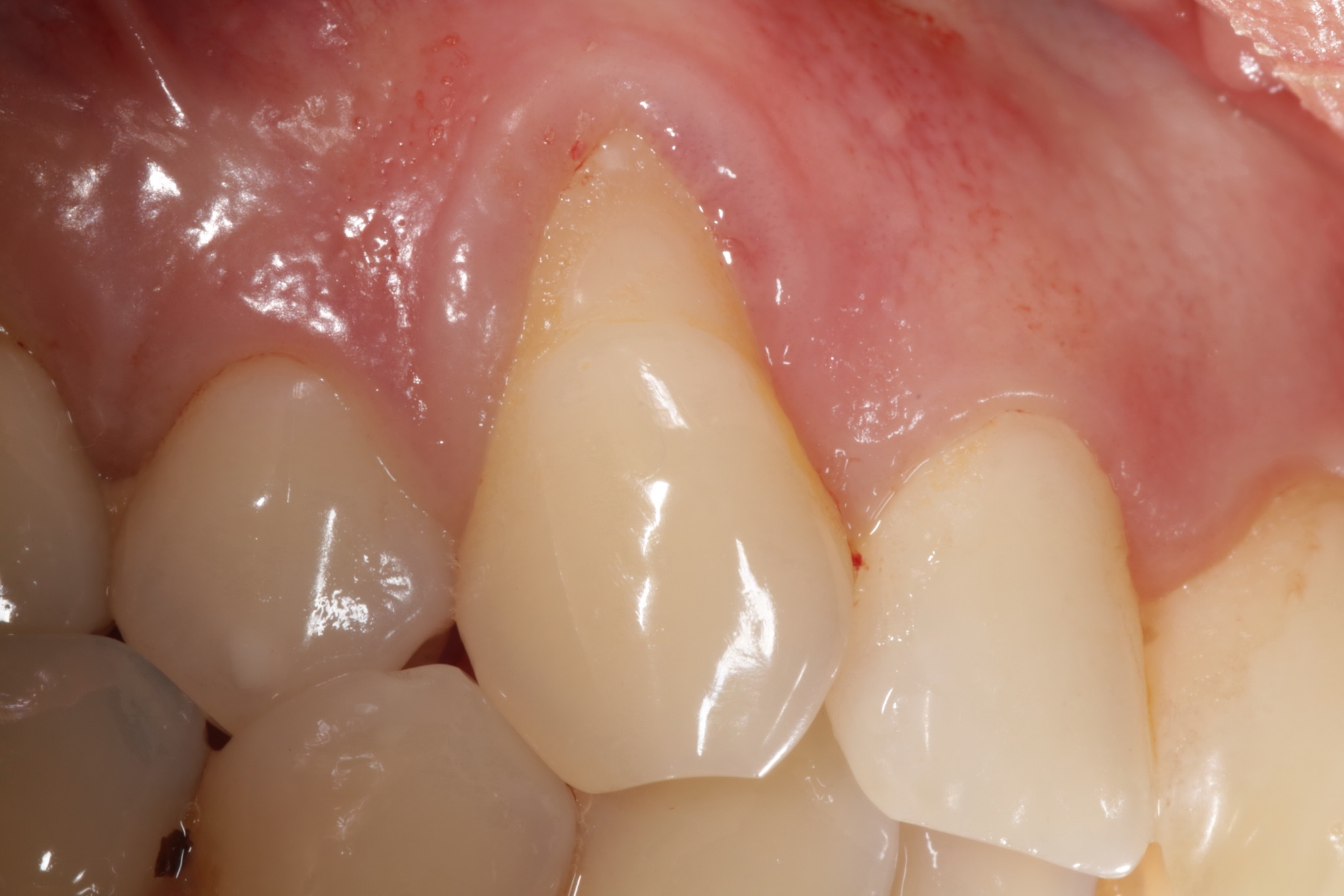 Gum Grafting Case - Before