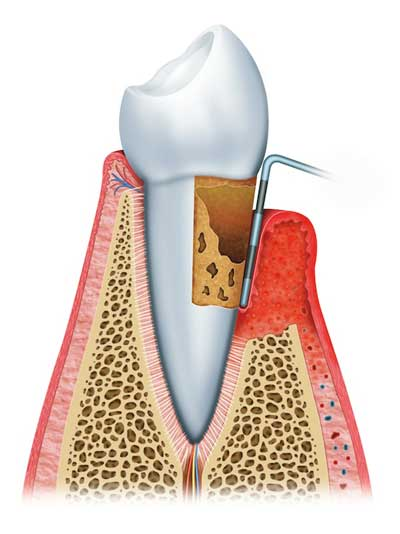 Advanced Periodontitis - Gum Disease - Berkeley, CA