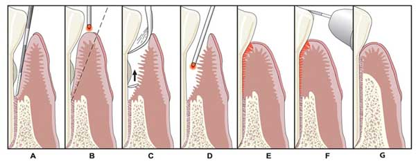 gum disease in Berkeley, CA