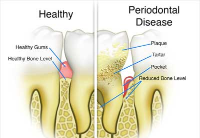 Gum Disease - Berkeley, CA